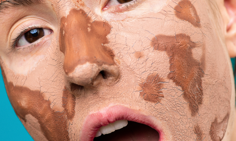 Las necesidades básicas del cuidado de la piel